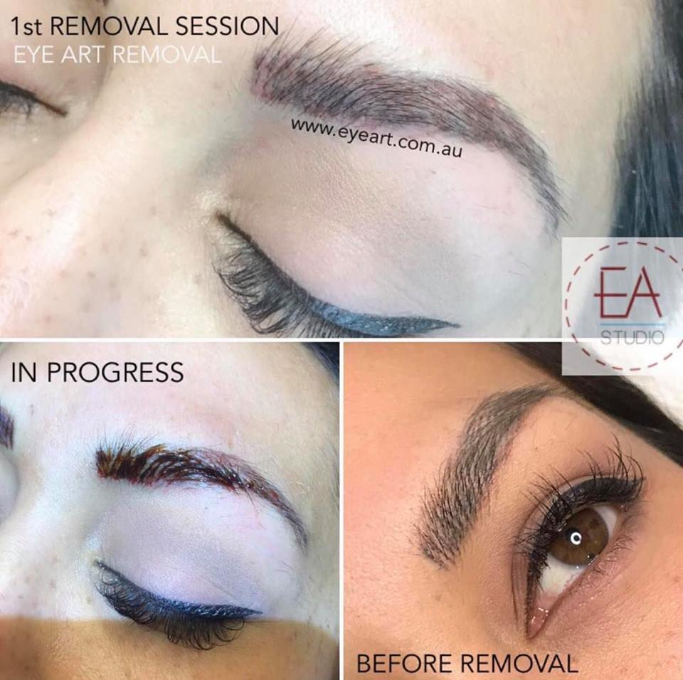 Eyebrow Tattoo Removal Before and After Photos - Eyebrow Tattoo Removal Melbourne