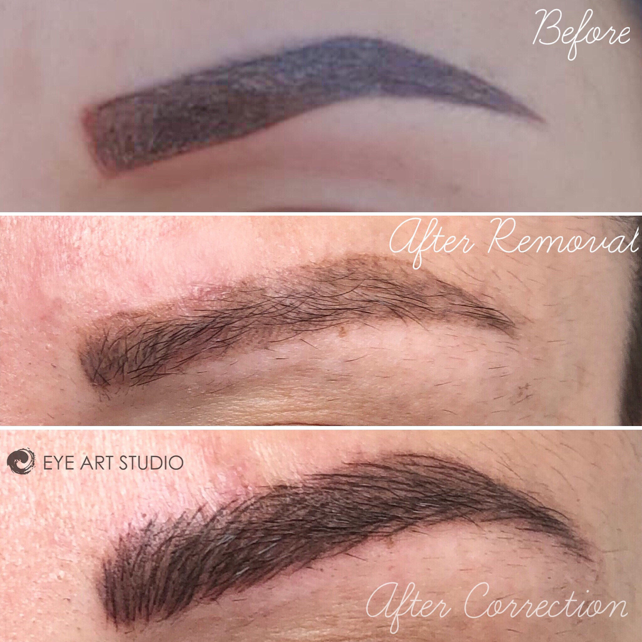 Eyebrow Tattoo Removal, Microblading Removal, Remove Microblading, Removal Brow Tattoo, Removing Botched Brow Tattoo