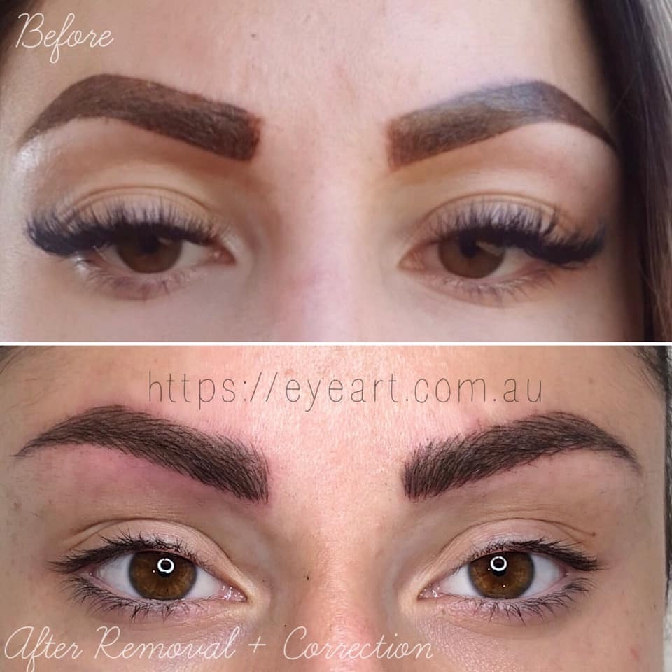 Fix eyebrow tattoo, eyebrow microblading fix, microblading repair, microblading correction, brow tattoo correction, repair