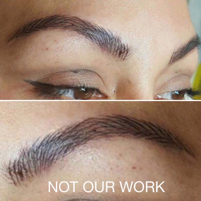 Botched Eyebrow Tattoo Removal - Eyebrow Tattoo Removal in Melbourne