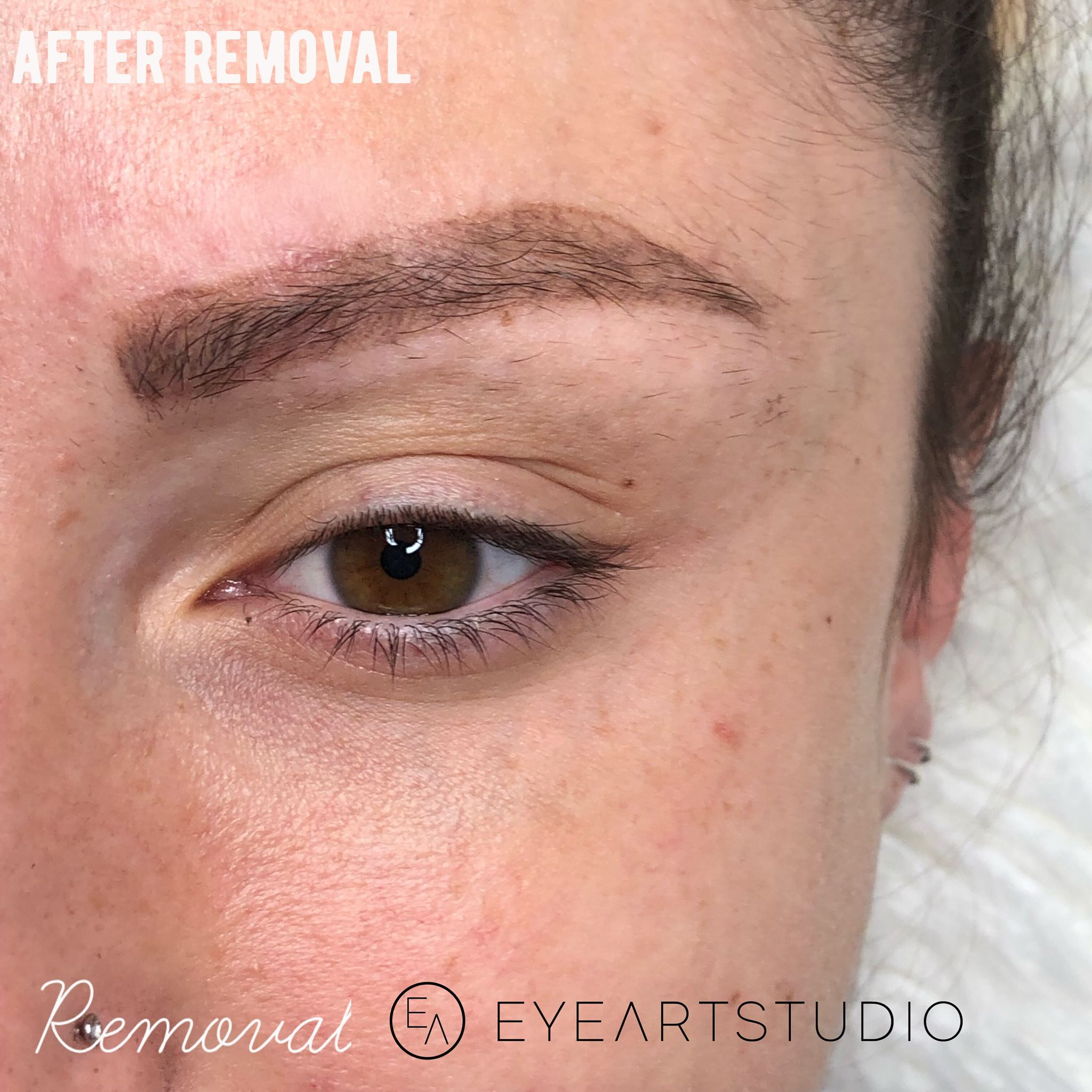 Eyebrow Tattoo Removal, Microblading Removal, Removal Brow Tattoo, Removal Microblading Brow Tattoo