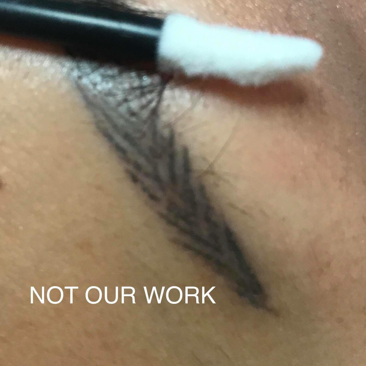 Eyebrow Tattoo Removal in Melbourne - Eyebrow Tattoo Correction