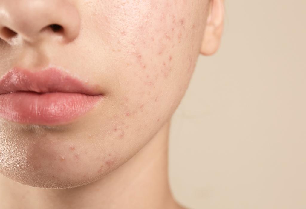 Kinn und Wange einer Frau mit unreiner Haut
