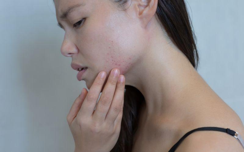Dunkelhaarige Frau ist im Profil zu sehen, sie schaut bedrückt und fasst mit einer Hand in ihr Gesicht. Im Bereich des Kinns sind Unreinheiten und Rötungen der Haut zu sehen.