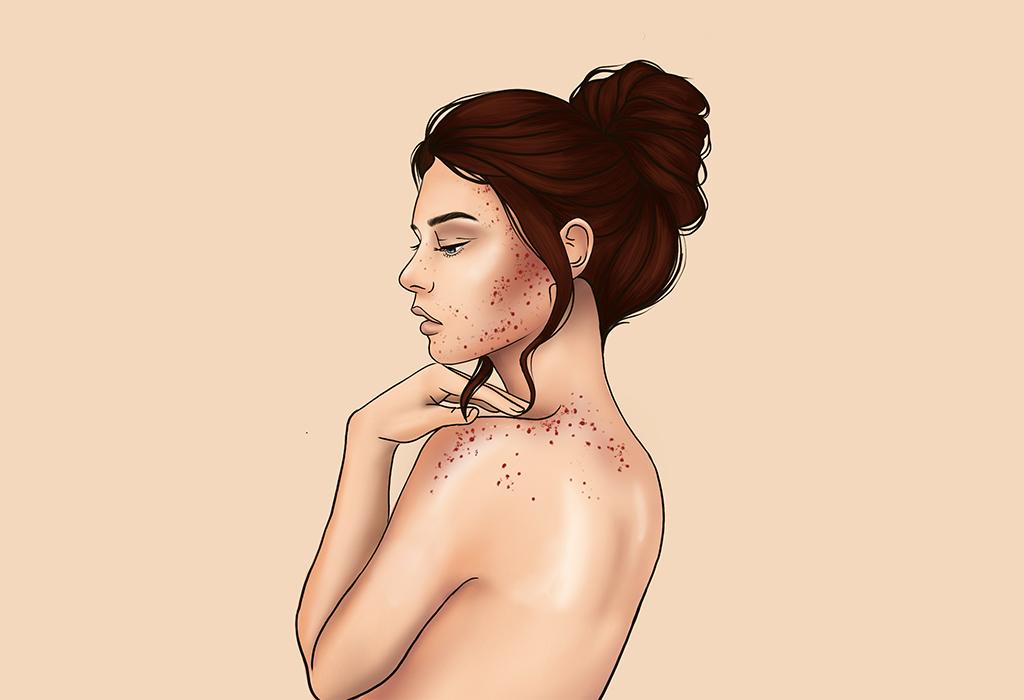Illustration von Frau mit dunklen Haaren, die schräg von hinten zu sehen ist und sowohl im Gesicht als auch auf dem Rücken rote Pickel hat.