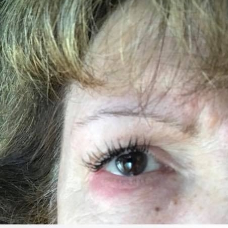 bf53f0620c3 Are you allergic to eyelash extensions? – Lash Affair