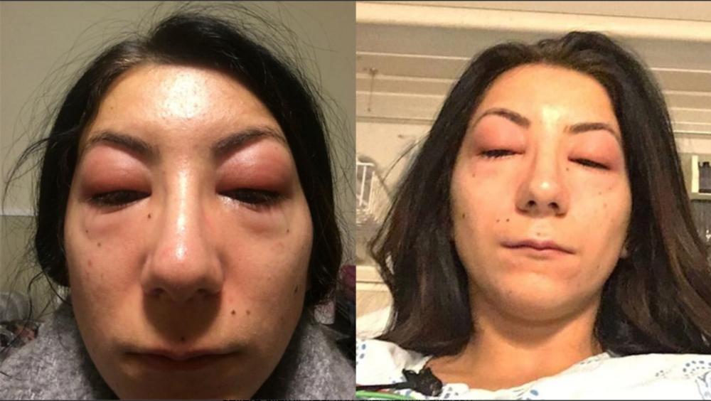 Ottawa woman shares allergic reaction to lashes