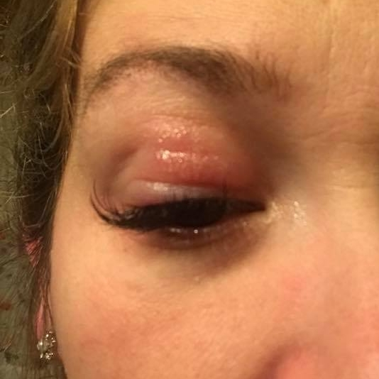 7bbd0dc9bb0 possible inflammation from allergy to lash extensions. Example of possible allergic  reaction