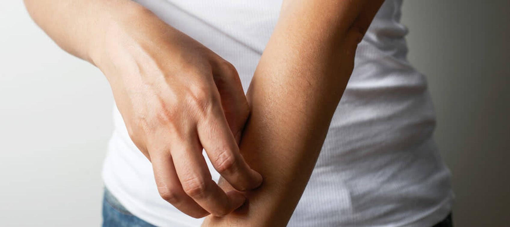 can CBD help with eczema