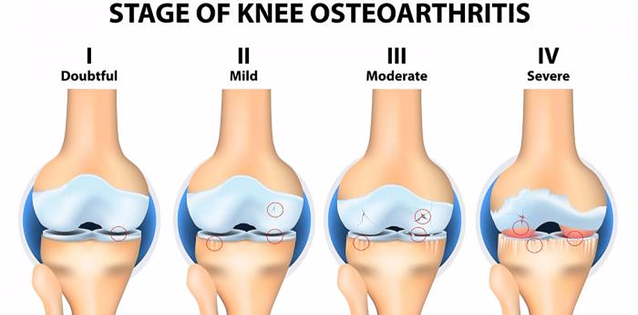 arthritis, knee arthritis, knee pain, stages of arthritis